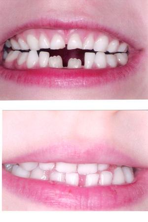 Wa_teeth